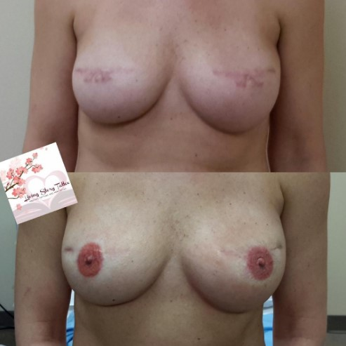 Bilateral Implant Based