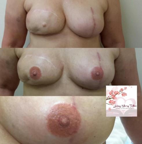 Bilateral L-Implant, R-DIEP