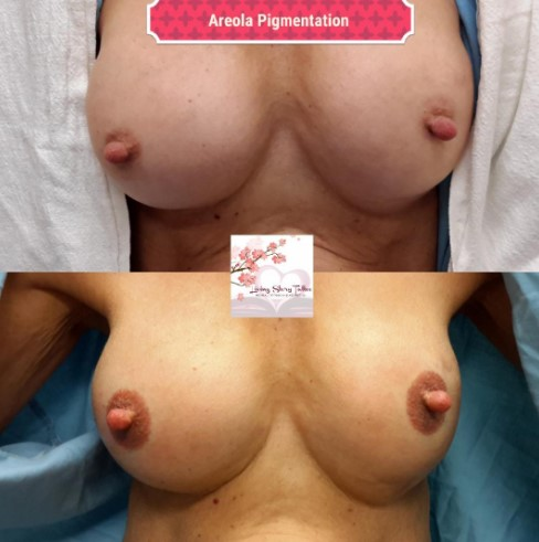 Areola Pigmentation