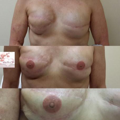 Bilateral 3D Implant Tattoo