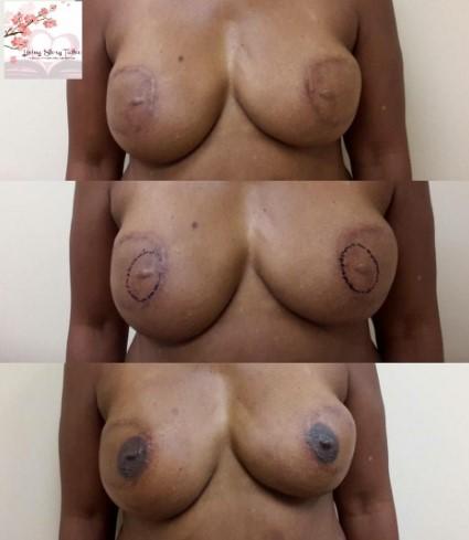 Bilateral DIEP Flap Tattoos