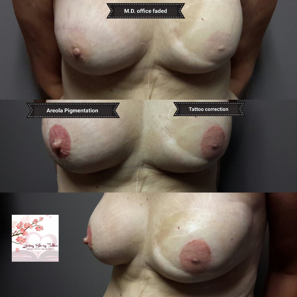 Areola Pigmentation and Tattoo Correction