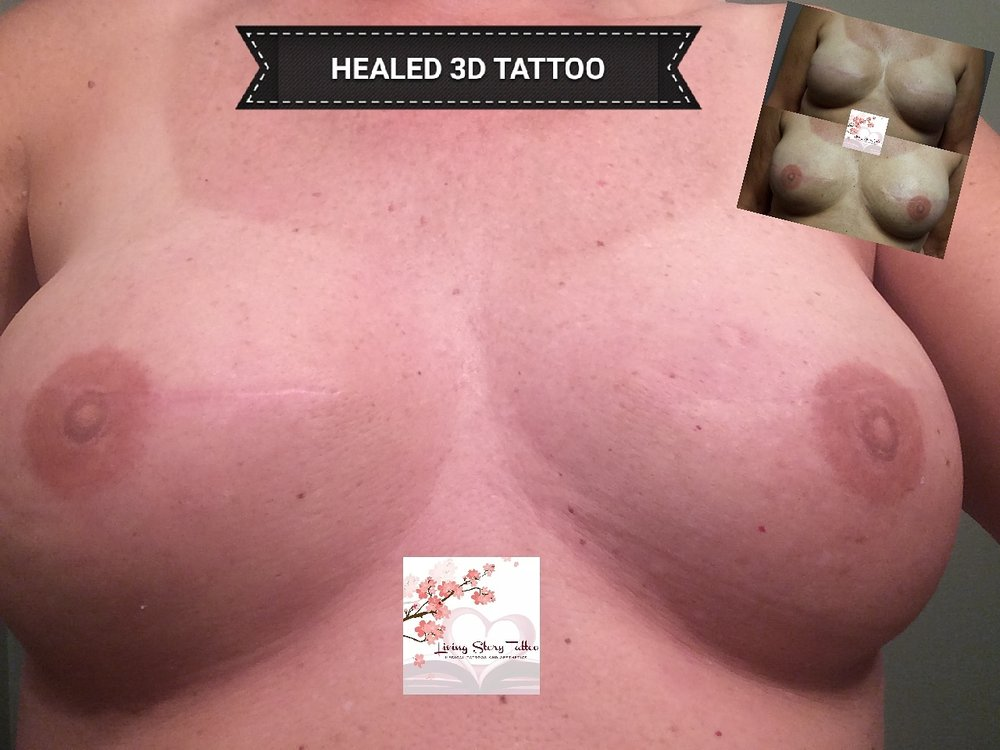 HEALED Bilateral 3D Nipple Tattoo