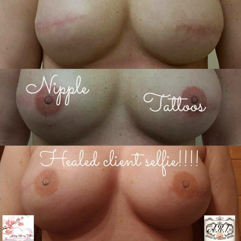 HEALED Bilateral Nipple Tattoos