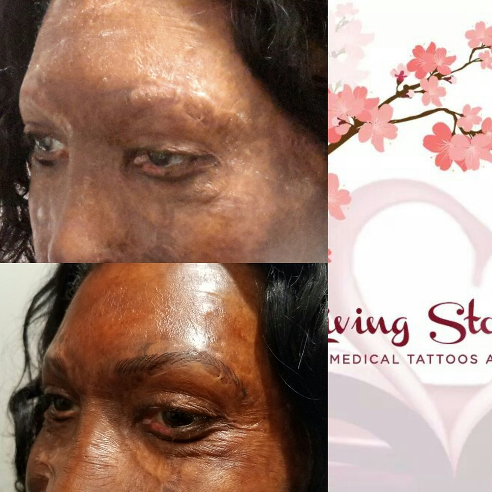 Eyebrow Machine Tattoo Side-View
