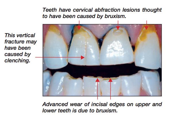 Teeth Grinding And Nightguards Soulsmile Aron Kivel