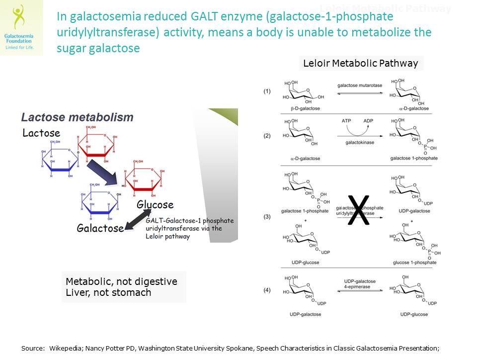 In Galactosemia, the Leloir Metabolic Pathway is not fully functional