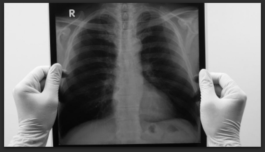 X-rays of the lungs and incidental findings.