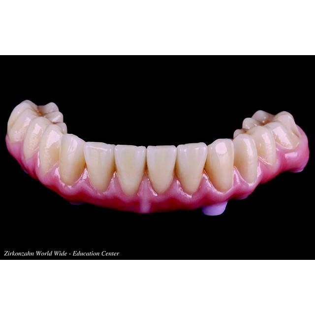 #zirkonzahn #dental #zirconia #lower #dentistry #prosthodontics #dentist #teeth