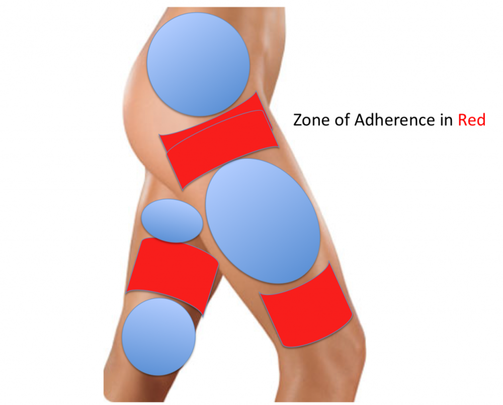 Zones of Adherence in Red are areas that liposuction should be avoided.  These areas are prone to contour irregularities when liposuctioned.