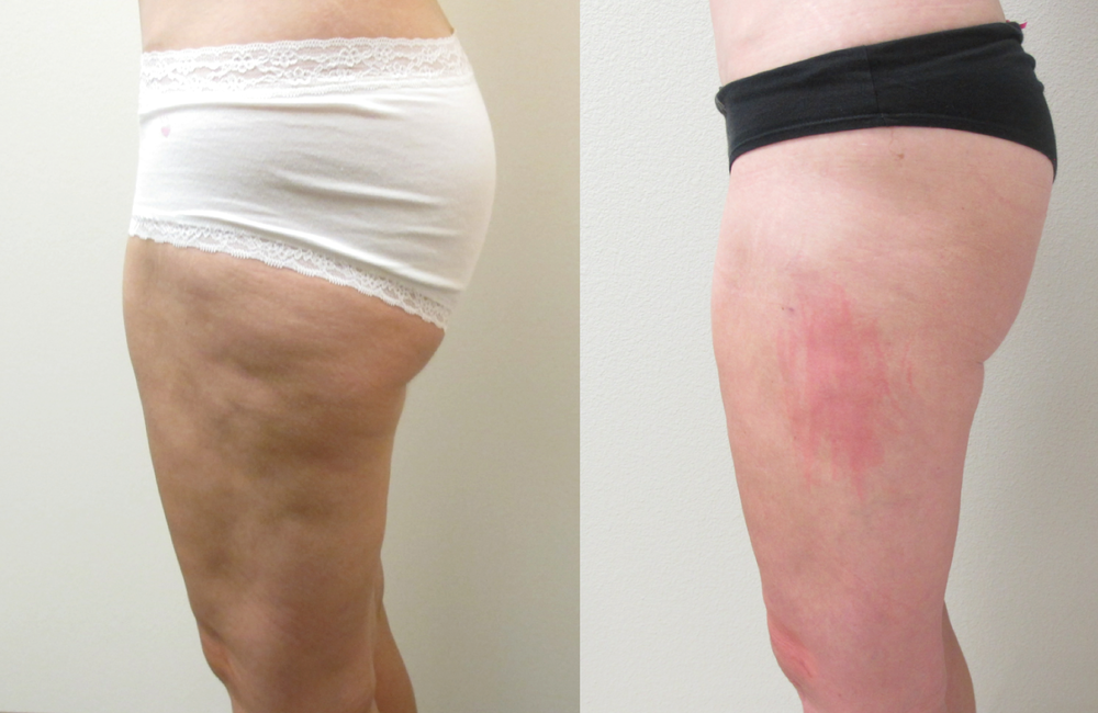 Before & After Photos after Correction of Contour Irreguarity.  The above patient previously had liposuction of her thighs from a DIFFERENT SURGEON.   The contour irregularities were corrected by Dr. De La Cruz with the use of a combination of VASER liposculpture and fat grafting.