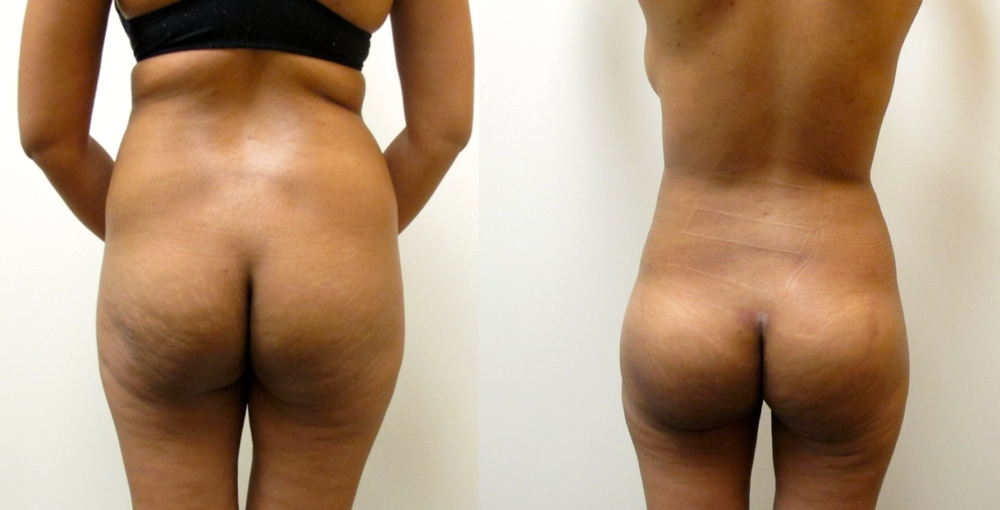 Figure1:  Before & After Photos of 4 D VASER Hi-Definition Liposuction with Brazilian Butt Lift (6 DAYS after Surgery.)  Procedure performed by Dr. Emmanuel De La Cruz in Houston, TX.