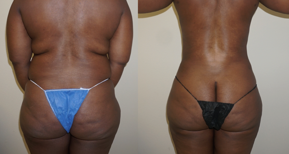 Figure 3: Before & After Photos of 4D VASER High-Definition Liposculpture of the back with fat transfer to the buttock (6 Weeks AFTER SURGERY.)  There is still swelling around the hips on this patient.  Skin retraction and swelling of the body will continue to improve up to 5-6 months after surgery.   Surgery performed by Dr. Emmanuel De La Cruz, a plastic surgeon in Houston.