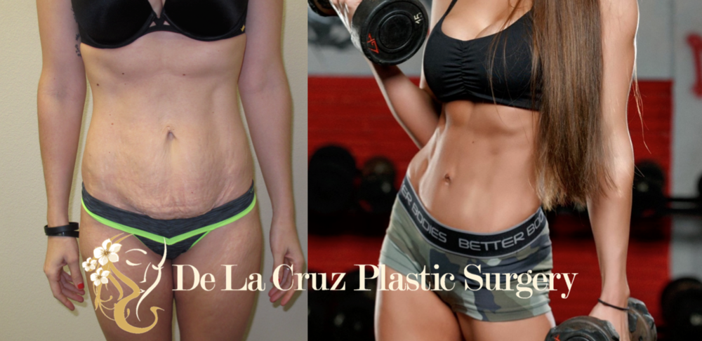 2 Years After Surgery after 4D Tummy Tuck (Hi-Definition Abdominoplasty) performed by Dr. Emmanuel De La Cruz.