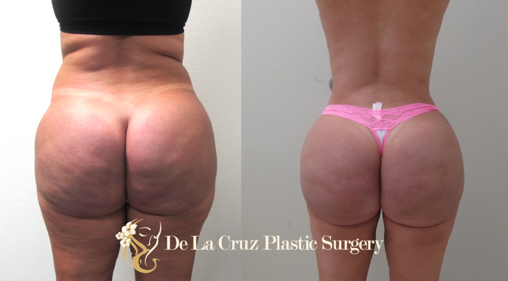 Figure 2:  Hydrogel/Biopolymer removal from the buttocks using the VASER Liposuction with fat transfer to the buttocks to correct the resulting deformity from removal of the biopolymer.  Patient had resolution of a chronic buttock pain after surgery.