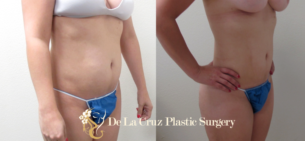 4D VASER Liposuction performed by Dr. Emmanuel De La Cruz, Houston Plastic Surgeon