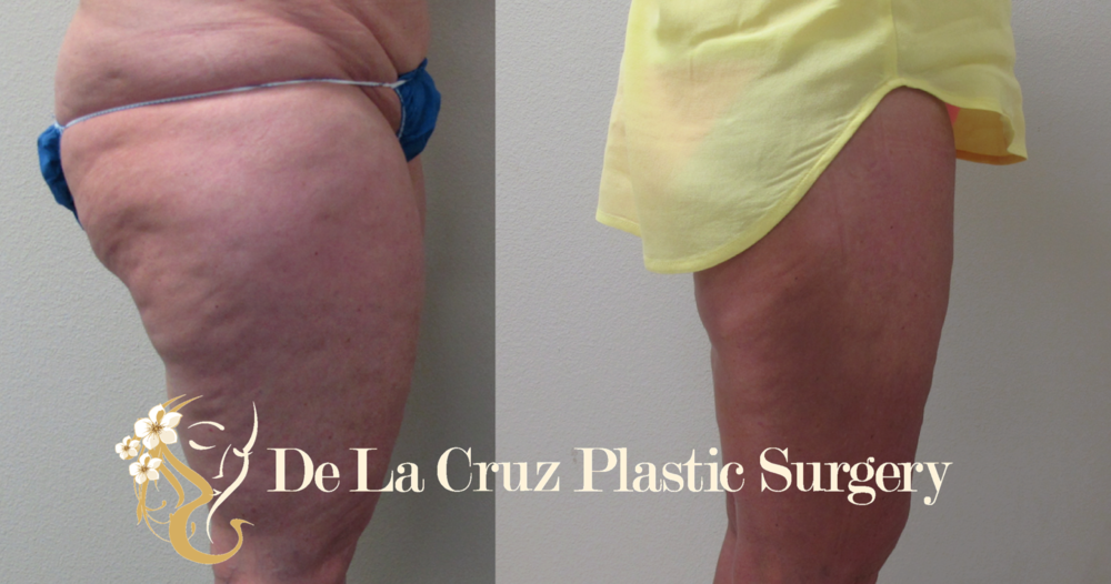 Before & After Photos (6 Weeks After Surgery) of Circumferential VASER Thigh Liposuction performed by Dr. Emmanuel De La Cruz of Houston, Texas.