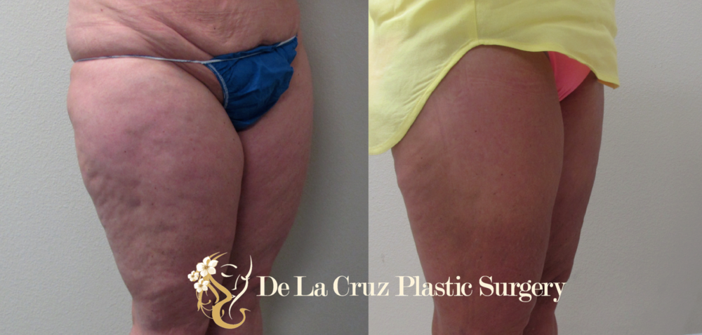 Before & After Photos (6 Weeks After Surgery) of Circumferential Thigh Liposuction using the VASER liposuction machine performed by Emmanuel De La Cruz MD, a Houston Plastic Surgeon.
