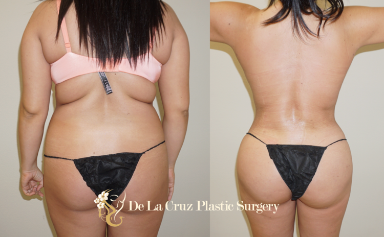 Figure 1: Before & After Photos of 4D VASER Liposuction with Brazilian Buttlift performed by Dr. Emmanuel De La Cruz (8 weeks after surgery)