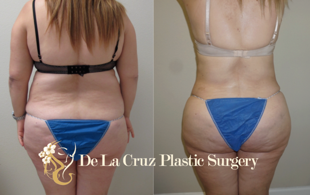 Before and After Photos of Liposuction performed by Dr. Emmanuel De La Cruz MD.