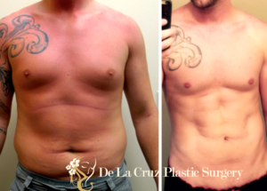 Before & After Photos (8 weeks after surgery) of VASER Hi-Definition  Liposculpture  on a male patient performed by Houston  Plastic Surgeon , Emmanuel De La Cruz MD, PLLC