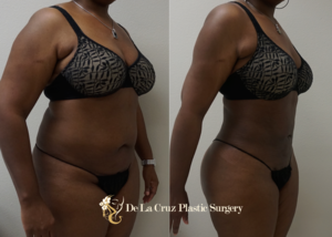 Before & After Photos (8 weeks after surgery) of VASER Hi-Definition  Liposuction  of the abdomen, arms, thighs, back with fat transfer to the buttocks (Brazilian Butt Lift) performed by Emmanuel De La Cruz MD, PLLC