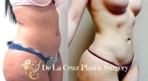 Before & After Photos (8 weeks after surgery) of VASER Hi-Definition Liposuction of the abdomen, arms, thighs, back with  Brazilian Butt Lif t performed by Emmanuel De La Cruz MD, PLLC.