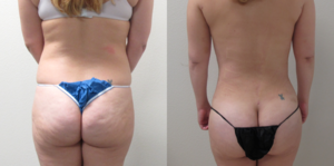 Before & After Photos of VASER Liposuction of the abdomen, back, arms and thighs with  Brazilian Butt Lift  performed by Dr. Emmanuel De La Cruz MD