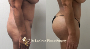 Before & After Photos of Brazilian Butt Lift with VASER Liposuction of the abdomen performed by Houston Plastic Surgeon Emmanuel De La Cruz MD