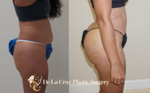 Before & After Photos of  Brazilian Butt Lift  performed by Emmanuel De La Cruz MD, PLLC ( Houston Plastic Surgeon )