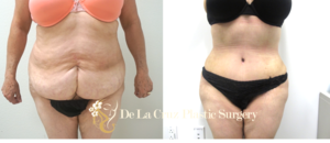 Before & After Photos of  Abdominoplasty  with VASER Liposuction of the flanks performed by Emmanuel De La Cruz MD, PLLC