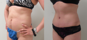 Before & After Photos of Abdominoplasty ( Tummy Tuck ) with VASER Liposuction of the flanks performed by plastic surgeon Emmanuel De La Cruz MD