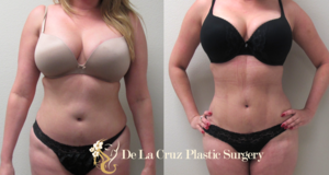 Before & After Photos of  4D VASER  Hi-Definition Liposuction of a female patient performed by Emmanuel De La Cruz MD, PLLC