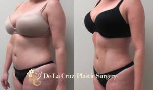 Befpre & After Photos of 4D VASER Hi-Definition  Liposuction  of a female patient performed by Emmanuel De La Cruz MD