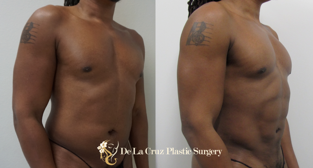 Before & After Photos of 4D VASER  Hi-Def Liposuction  of the arms, abdomen/flanks/back performed by Emmanuel De La Cruz MD, PLLC (Plastic Surgeon in Houston, Texas)
