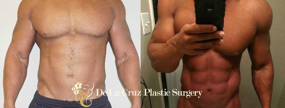 Before & After Photos (8 weeks after surgery) of  VASER Hi-Definition Liposculpture  of the arms/deltoids, abdomen/flanks and back performed by Emmanuel De La Cruz MD, PLLC (Houston Plastic Surgeon)