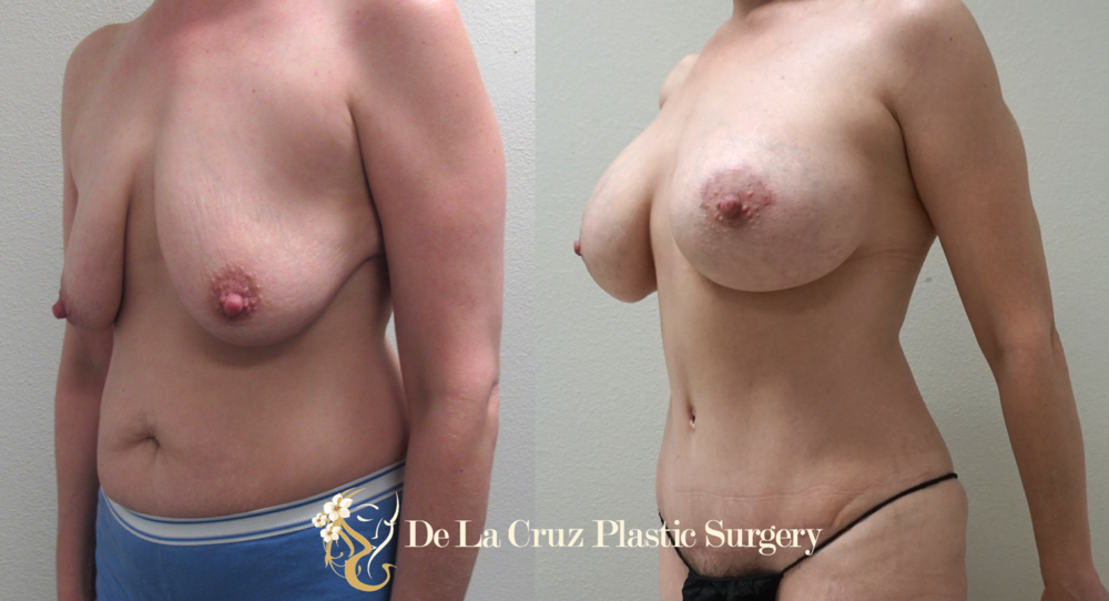 Before & After  Mommy Make Over  (Abdominoplasty/Tummy Tuck and Breast Augmentation with Crescent breast lift) performed by Emmanuel De La Cruz MD