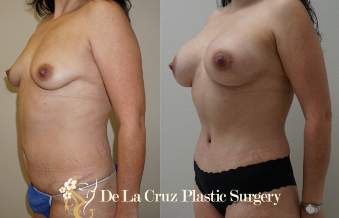 Before and After Mommy Make Over (Abdominoplasty and Breast Augmentation) performed by Emmanuel De La Cruz MD, PLLC.