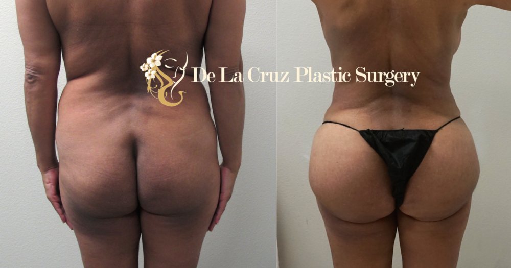 Before and After Photo Liposuction   (VASER Liposuction with Brazilian Butt Lift)