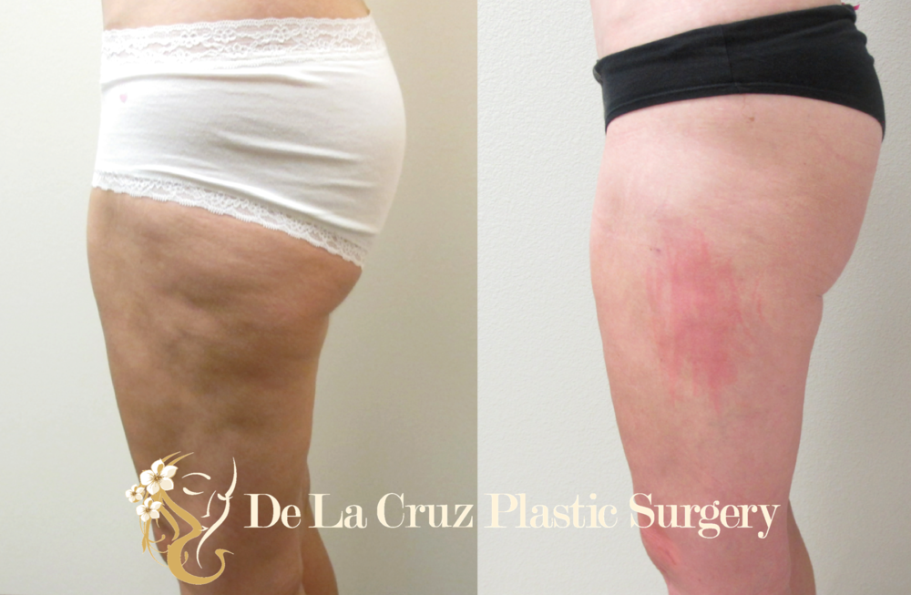 Before and After  Correction of Contour Irregularitie s .  Patient previously had traditional liposuction from another surgeon which resulted to contour irregularity of the thighs.  Contour irregularities of the thigh were corrected with  VASER liposuction  with  fat transfer  to the thighs. Procedure performed by Dr. Emmanuel De La Cruz.