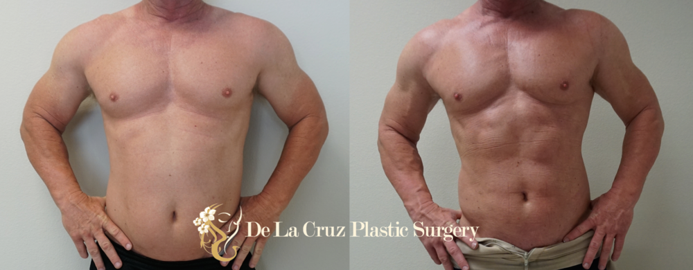 Before and After Liposuction   (4D Hi-definition VASER liposuction; 7 weeks after surgery) performed by Emmanuel De La Cruz MD, PLLC Plastic Surgeon,