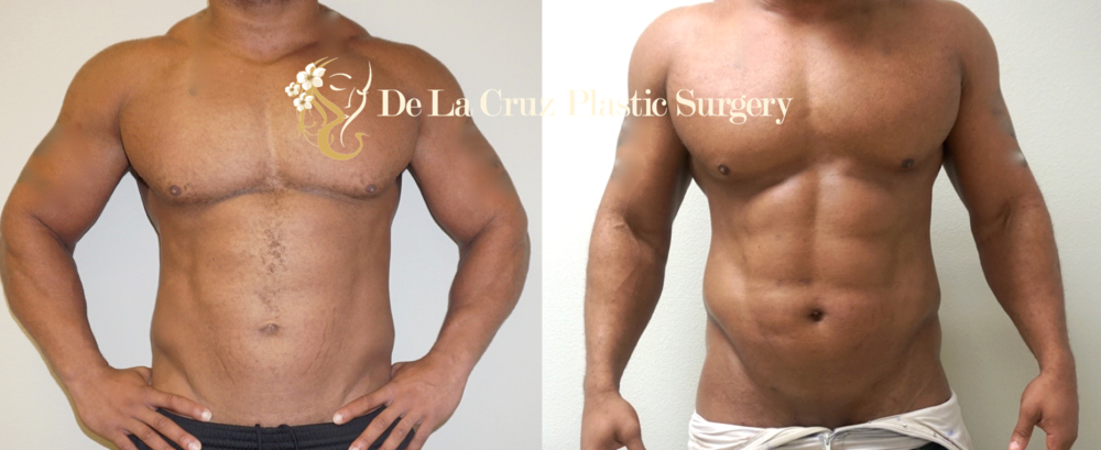 Before & After Photos of 4D VASER Hi-Definition Liposuction (Abdominal Etching) 12 weeks after surgery.  Procedure performed by Dr. Emmanuel De La Cruz, Houston Plastic Surgeon