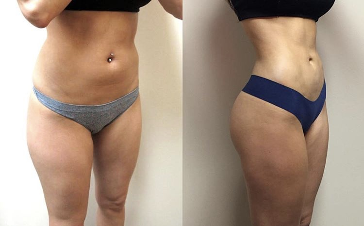 VASER liposuction with fat transfer to the buttocks performed by Dr. De La Cruz.