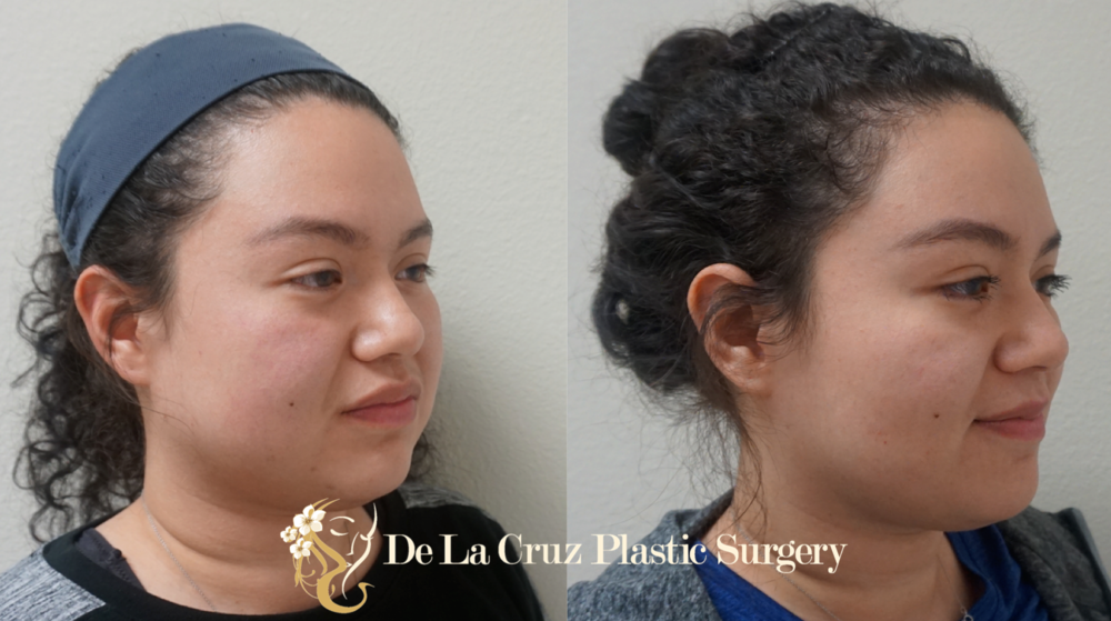 Before and After Photos of Buccal Fat Removal, Oblique View (  Bichectomia  ) 8 weeks after surgery performed by Houston Plastic Surgeon Emmanuel De La Cruz MD, PLLC.