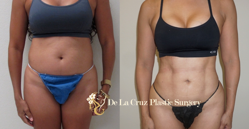 Before and After Liposuction (  4D VASER Hi-Definition Liposuction  ) performed by Emmanuel De La Cruz MD, PLLC