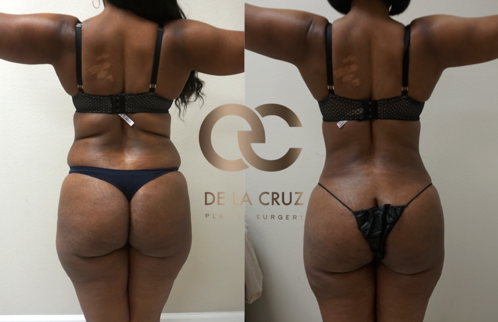 Before and After Photos of  VASER Liposuction  of the back performed by Houston Plastic Surgeon Emmanuel de La Cruz MD