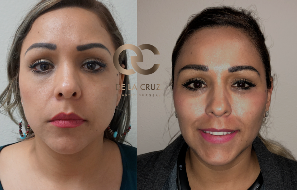 Before and After Photos of  Buccal Fat removal  (1 month after surgery) performed by Dr. Emmanuel De La Cruz MD, PLLC