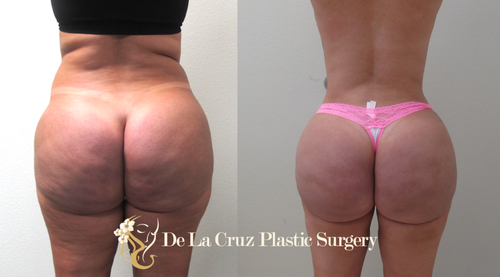 Before & After  Removal of Biopolymer /Silicone granulomas from the buttock using VASER Liposuction with fat transfer to reconstruct the buttock.   Procedure performed by Dr. Emmanuel De La Cruz