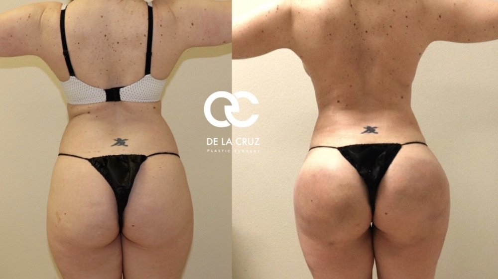 Before and After  Brazilian Butt Lift   with VASER High Definition Liposuction performed by Dr. EMmanuel De La Cruz