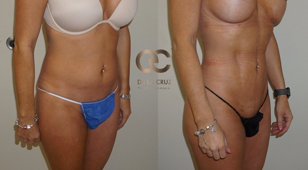 Figure 1:    Before & After Liposuction  (4D Hi-Def VASER Liposuction)   4 weeks after surgery.  Note that skin retraction continues to improve up to 5- 6 months after surgery.  This procedure was performed by Houston plastic surgeon Dr. Emmanuel De La Cruz.